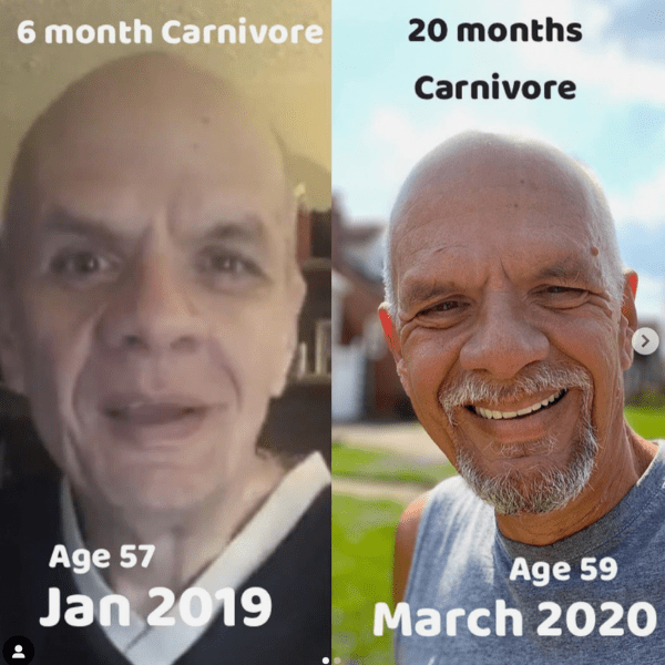 Brett before after carnivore diet results 7