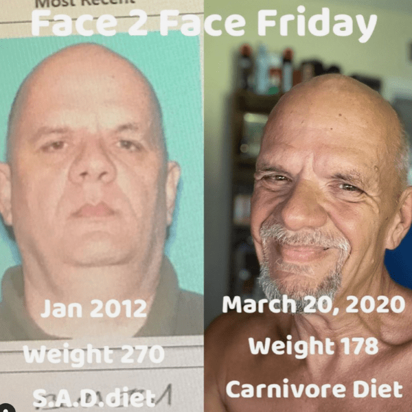 Brett before after carnivore diet results depression 3