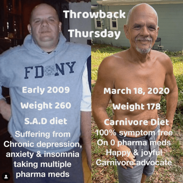 Brett before after carnivore diet results joint pain 2