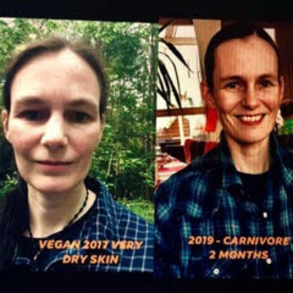 Corina before after carnivore diet results nutrient deficiency